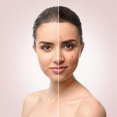 Acne hampering your confidence? Pimples refusing to leave your face? Fear no more Hair Beauty and you provides best acne treatment, pimples treatments. -------- ➤Get a consultation call: -------------- Camouflage Makeup, Acne Treatments, Laser Skin Rejuvenation, Skin Resurfacing, Acne Marks, Acne Scar Removal, Metabolism, Style