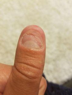 Se ronger les ongles est propre aux perfectionnistes
