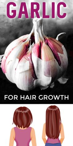 Use Garlic For Hair Growth #hair #haircare #selfcare #selfcarebeautytips #diyhair #healthyhair #beautytipsforhair #softhair #smoothhair #hairgrowth #longhair