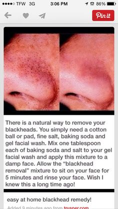 Kind of a gross pic, but helpful info.Easy at home blackhead remover! Use baking soda, salt, and any gel face wash of your choice! mix and leave on for five minutes. Puberty is coming! Blackhead Remedies, Blackhead Remover, Blackhead Mask, Skin Tips, Skin Care Tips, Beauty Care, Beauty Skin, Beauty Stuff, Beauty Makeup