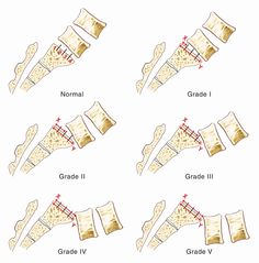 This in-depth discussion about spondylolisthesis explains what causes a vertebra to slip and what the different grades (eg, grade 1 spondylolisthesis) look like.