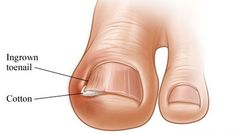 Ingrown nail that is also known as Onychocryptosis is a common form of nail diseases that is quiet painful! It occurs when the when the edge of the nail grows into the skin of the toe. That is what makes it more painful. The ingrown nails can occur in both hands and feet, but the...