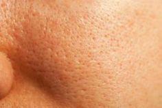 Zatkane pory - jedna z przyczyn trądziku i zaczerwienień na twarzy