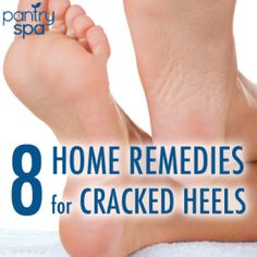 8 Cracked Heel Remedies for Silky Smooth Feet Naturally at Home