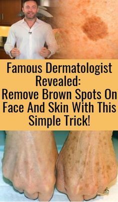 Famous Dermatologist Revealed: Remove Brown Spots On Face And Skin With This Simple Trick! - House for Health Daily Brown Spots On Skin, Brown Spots On Face, Skin Spots, Facial Brown Spots, Beauty Skin, Health And Beauty, Face Beauty, Tips Belleza, Skin Treatments