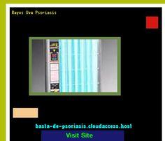 Rayos Uva Psoriasis 223755 - Basta De Psoriasis!