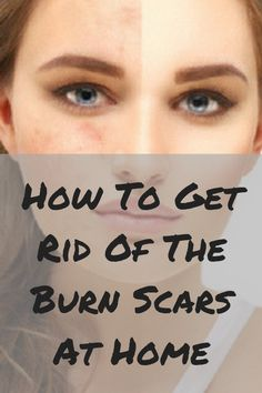 How To Get Rid Of The Burn Scars At Home Many people face this burnt issues. For some skins, these burnt scars remain same. Those type of skin should try our home remedies to get rid of burn scars Burn Skin Home Remedies, Home Remedies For Burns, Scar Remedies, Dry Skin Remedies, Homeopathic Remedies, Natural Remedies For Congestion, Natural Remedies For Anxiety, Natural Cures, Burn Scar Removal
