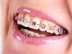 Orthodontics is a branch of dentistry that deals with the diagnosis, treatment, and prevention of certain dental irregularities. To get relieved from all issues of dental health the orthodontics dentist in Doncaster is the perfect solution.