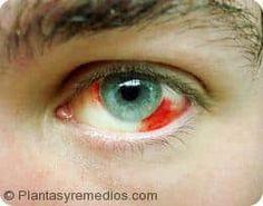 Algunos remedios caseros a base de hierbas útiles para el tratamiento de ojos rojos o inyectados de sangre se dan a continuación en este articulo