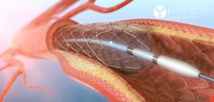 Polygon Medical Animation | Angioplasty Medical Illustration