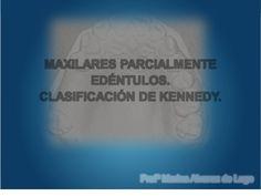 CLASIFICACION DE KENNEDY - PPT
