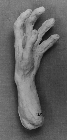 Auguste Rodin (French, 1840–1917). Study of a hand, last quarter 19th–early 20th century. The Metropolitan Museum of Art, New York. Gift of the sculptor, 1912 (12.12.17) #Halloween