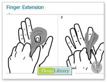 therapylibrary- Putty Exercises