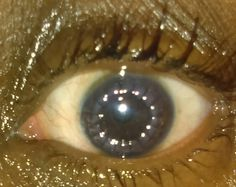This is my eye after 13 days of having a cornea transplant. I just used meds in my eye so thats why it appears so moist. Also you can see my stiches