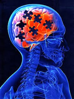 Kidney Problems Linked to Brain Disorders - http://brainmysteries.com/kidney-problems-linked-brain-disorders/