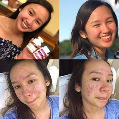 ✅Convert your dry skin,yellowish skin, pale skin, fair skin or even your white skin into a GLOWING BEAUTIFUL WHITE SKIN!With the Help of Luxxe White achieve your dream skin and color. Turn your skin i Polycystic Ovary Syndrome Pcos, Big Pores, Acne Marks, Uneven Skin, Pale Skin, Skin Problems, Good Skin, Anti Aging, The Help