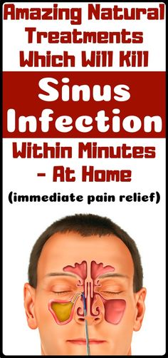Sinus Remedies Sinus Infection Treatment: 10 Home Remedies To Get Rid Of Sinus Infection Within Minutes Health And Fitness Tips, Health And Nutrition, Health And Beauty, Health And Wellness, Health Tips, Headache Remedies, Herbal Remedies, Health Remedies, Natural Home Remedies