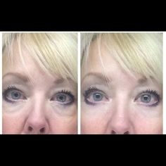 Two samples Two samples instantly ageless Jeunesse instantly ageless - two vial samples. Anti Aging Tips, Anti Aging Skin Care, Natural Skin Care, Latina, Dna Repair, Under Eye Bags, Beauty Cream, Beauty Hacks