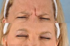 http://www.maasclinic.com/cosmetic-injections/botox-cosmetic/