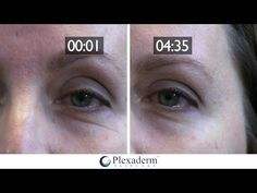Official Store of Plexaderm Skincare – Instantly Remove Wrinkles and Fine… – Care – Skin care , beauty ideas and skin care tips Reduce Under Eye Bags, Personal Beauty Routine, Instant Face Lift, Face Cream For Wrinkles, Firming Eye Cream, Dark Circles Under Eyes, Wrinkled Skin, Prevent Wrinkles, Wrinkle Remover