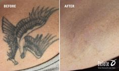 """Weekend is over; time for Monday's """"Before & After"""" tattoo removal at Delete- Tattoo Removal and Laser Salon. You probably know that most impulse i.e. regretted tattoos are received during a weekend thus our phrase...ink before you drink! #tattooremovalbeforeandafter #tattooremovallaser #removetattoos"""