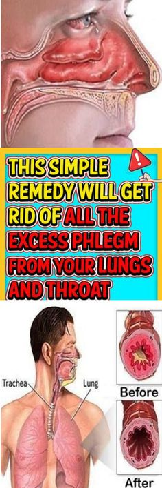This Simple Remedy Will Get Rid of All the Excess Phlegm From Your Lungs and Throat - Healthy Natural Magazine Allergy Asthma, Wellness Tips, Health And Wellness, Health And Beauty, Health Diet, Natural Asthma Remedies, Health Remedies, Getting Rid Of Phlegm, Beauty