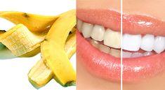 Dişleri Beyazlatmak için Muz Kabuğu Yöntemi Watermelon, Banana, Fruit, Food, Meal, The Fruit, Essen, Hoods, Bananas
