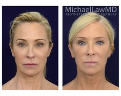 Thank facial rejuvenation procedure that