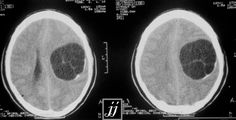 Hydatid Cyst - Brain, CT axial, Rare Multivesicular (Spot diagnosis) Radiology Imaging, Medical Imaging, Anatomy And Physiology, Ultrasound, Surgery, Radios, Nursing, Science, Suits