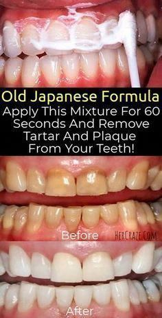OLD JAPANESE FORMULA APPLY THIS MIXTURE FOR 60 SECONDS AND REMOVE TARTAR AND PLAQUE FROM YOUR TEETH! #OralDentalCare #WhyDoWeDoOralCare #WhyOralCareIsImportant #ToothpasteIsOralCare Oral Health, Dental Health, Dental Care, Teeth Health, Health Tips, Healthy Teeth, Health Benefits, Gum Health, Causes Of Mouth Ulcers