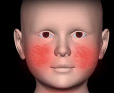 Obat eksim dipasaran juga banyak tersedia. Perawatan wajah karena eksim harus segera ditangani karena merusak penampilan. Apa penyebab eksim dan cara mengatasinya ?