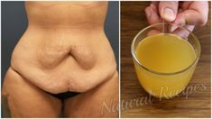 Drink this magic fat burning tea , and belly fat will be gone permanently! - YouTube Fat Burning Tea, Youtube, Fat Burner, Doctor Advice, Glass Of Milk, Tea Tree Oil, Detox, Weight Loss, Health