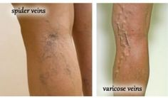 Essential Oils For varicose and spider veins