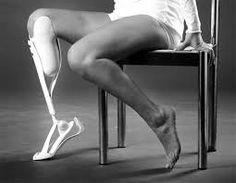 3d printing prosthetic leg - Google Search