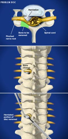 Cervical Posterior Foraminotomy removes bone and/or portions of a herniated disc or diseased disc to relieve neck and radiating arm pain caused by parts of the disc pressing on nerve roots. http://www.southeasternspine.com/procedures-treatments/cervical-posterior-foraminotomy/