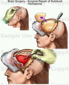 NeuroSurgery -  brain surgery