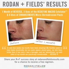 """Check out these incredible """"Before and After"""" results from Rodan + Fields® Consultant Jessie P., after using our REVERSE Regimen, REDEFINE MACRO Exfoliator™ and ENHANCEMENTS Micro-Dermabrasion Paste. #askcoachfrida.myrandf.com"""