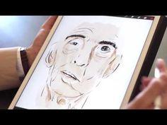 Paralisis facial. Santiago Ortiz