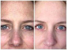 Ohh la la!!! Look at Laura!!! I am loving her results!!! This is what 60 days on our REVERSE - REDEFINED special with the AWARD WINNING Multi-Function Eye Cream LOOK LIKE! No wonder we are the FASTEST growing PREMIUM Skincare line in the US for the past two years! Contact me and let's customize a plan for you!! Better yet become a consultant for 25% off!! Message me today! :) #changingskin #changinglives