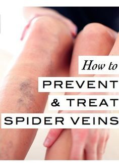What you need to know (from a dermatologist) on how to prevent and treat those dreaded spider veins.