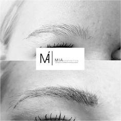 #MIAAesthetics #Microblading #Eyebrows #MIABlackDiamondBlading #beauty