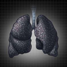 Tin Sức Khỏe Đây là nguyên nhân và triệu chứng của bệnh ung thư phổi ở những người không hút thuốc
