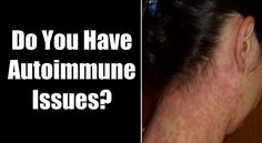 Sometimes a strong immune system can work against you. Reference these autoimmune disease symptoms now.