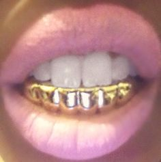 Come with mold and instructions!Super easy to get your best hip hop look!Choose:-Top or Bottom Gold tone-Top with Bling-Bottom silver with pink and clear stones-Top and Bottom bling set