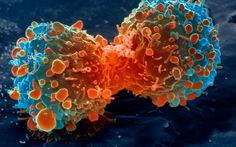 Cure for terminal cancer found in game-changing drugs #hospice #chaplain #certification http://hotel.nef2.com/cure-for-terminal-cancer-found-in-game-changing-drugs-hospice-chaplain-certification/  #terminal cancer # 'Cure for terminal cancer' found in game-changing drugs Terminally ill cancer patients have been effectively cured by a game-changing new class of drugs. In one trial, more than half of patients who had just months to live saw deadly tumours shrink or completely disappear. In…