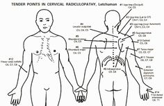 C5/C6 nerve pain.Tender Points In Radiculopathy