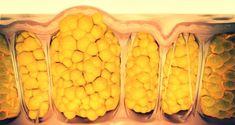 La cellulite colpisce circa 8 donne su 10 di qualunque età e statura ed è causata da una dieta errata e squilibrio ormonale. Ecco come risolverla facilmente in modo naturale