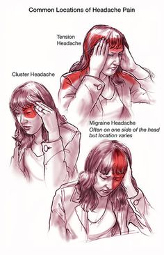 Common locations of headache pain - tension, cluster, and migraine headaches ... http://headaches17.info/category/headache-location/