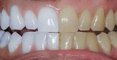 Unbelievable Tips: He mixed 2 ingredients and passed .- Dicas Inacreditáveis: Ele misturou 2 ingredientes e passou nos dentes. O… Unbelievable Tips: He mixed 2 ingredients and brushed his teeth. Coconut Oil For Teeth, Coconut Oil Pulling, Coconut Oil Uses, Tumeric And Coconut Oil, Baking Soda Coconut Oil, Teeth Whitening Remedies, Natural Teeth Whitening, Tumeric For Teeth Whitening, Whiten Teeth With Tumeric