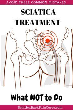 Are you wondering why your sciatic nerve pain doesn't get any better? Maybe you're making these 5 common home treatment mistakes. Learn what you should and shouldn't do when treating your lower back pain at home Sciatic Nerve Exercises, Sciatic Nerve Relief, Sciatic Pain, Back Pain Exercises, Sciatica Stretches, Lower Back Pain Relief, Yoga For Back Pain, Hip Pain, Alternative Health